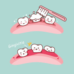 gingivitis treatment