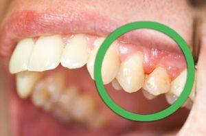 gingivitis-1