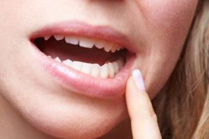 gingivitis-during-pregnancy-1