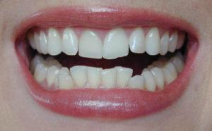 Crowded teeth - Proactive Dental