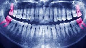 Wisdom Teeth - Proactive Dental