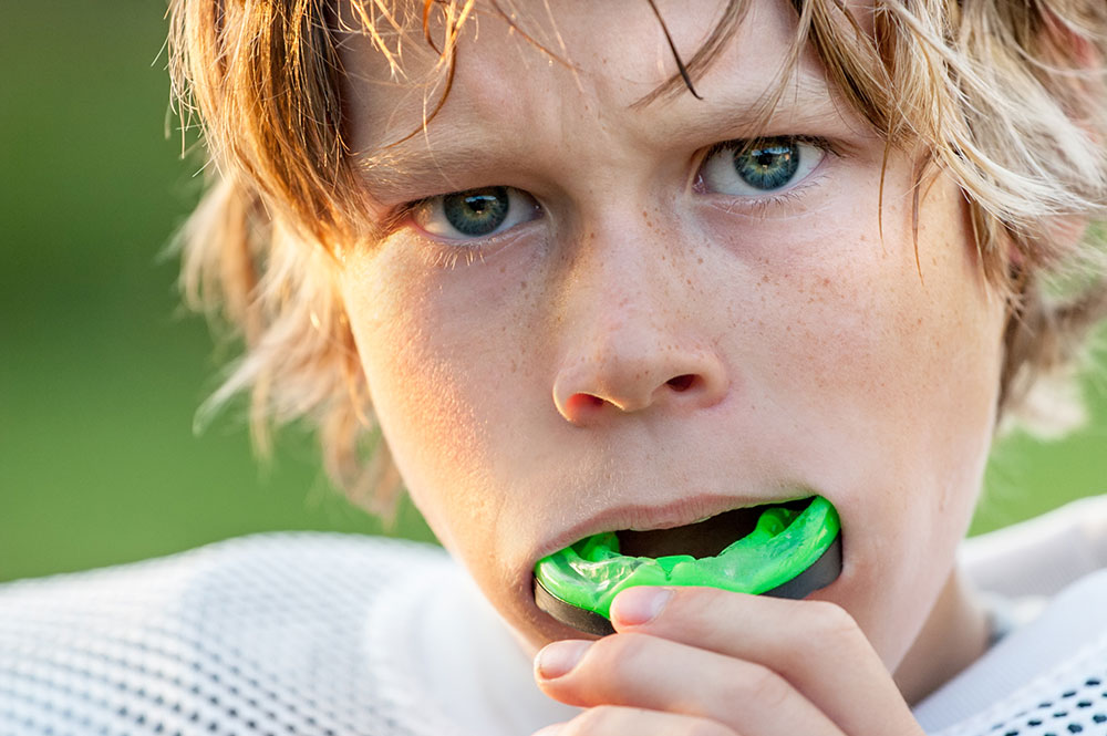 Custom-fitted Mouthguards – Protect your smile